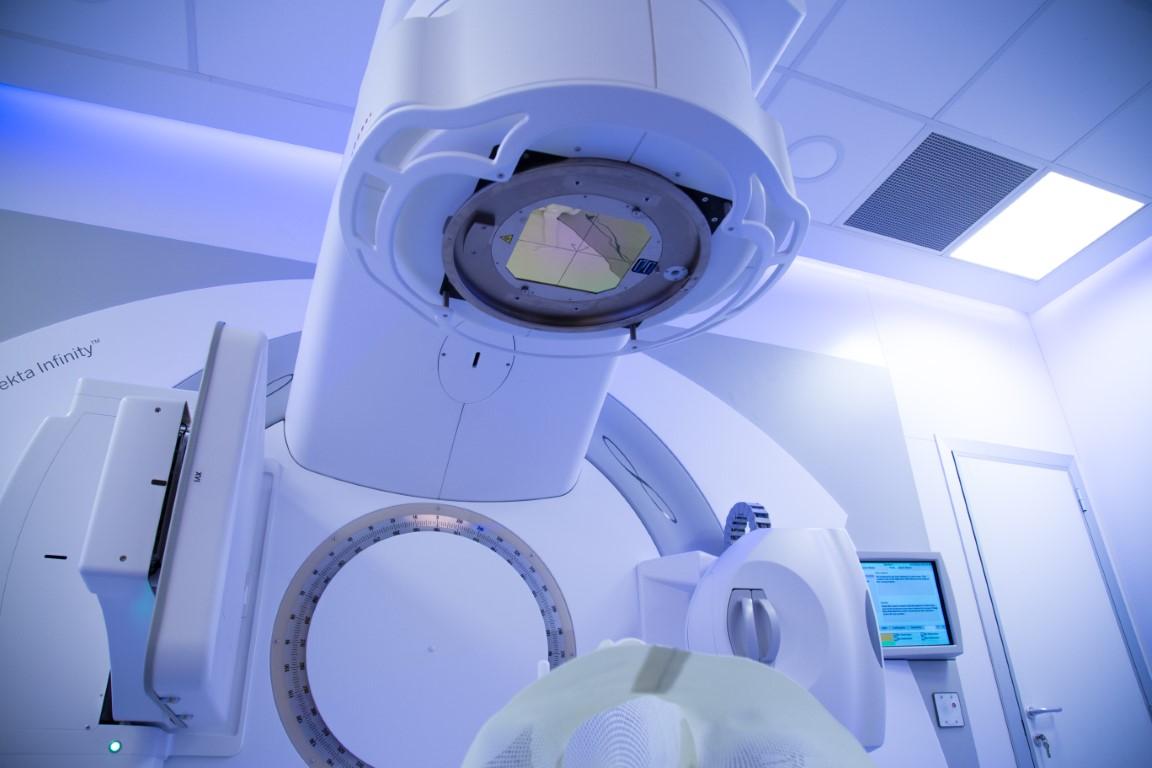 tratament radioterapie